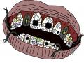 Robot Teeth